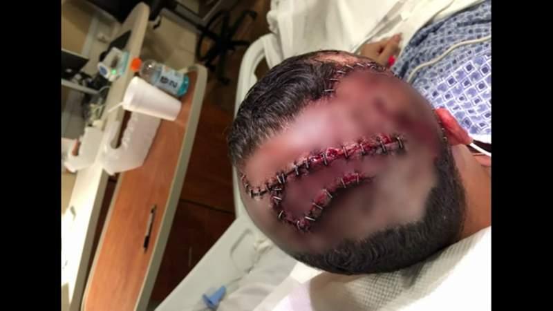 Gator bite survivor recalls attack on Myakka River