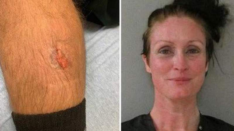VIdeo: Woman bites chunk out of Flagler deputy's leg